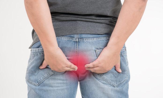 Emorroidi: cosa sono, sintomi, cause e possibili cure
