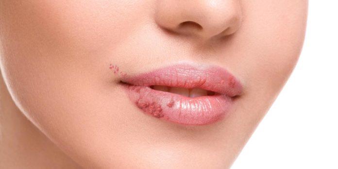 Herpes Labiale: che cos'è, sintomi, diagnosi e possibili cure