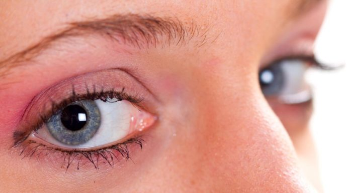 Herpres Oculare: che cos'è, sintomi, diagnosi e possibili cure