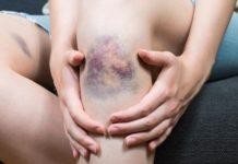 Ematoma: che cos'è, cause, sintomi e possibili cure