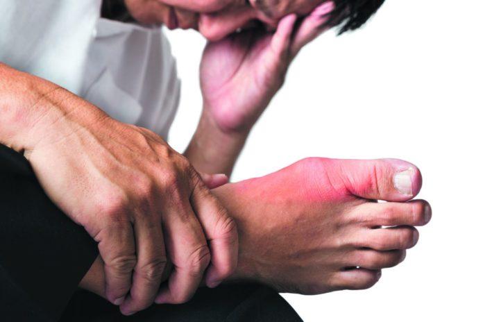 Gotta: che cos'è, cause, sintomi, diagnosi e possibili cure