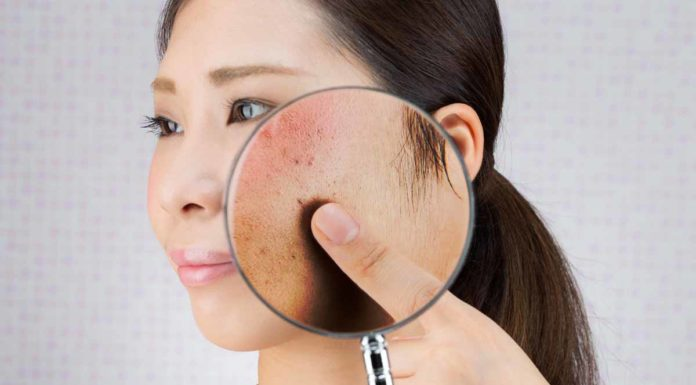 Lupus Eritematoso Sistemico (LES): che cos'è, sintomi, cause e come diagnosticarla