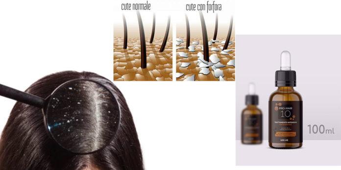Pro-Hair 10 MFO Pharma: Lozione trattamento intensivo Antiforfora, funziona davvero? Recensioni, opinioni e dove comprarlo