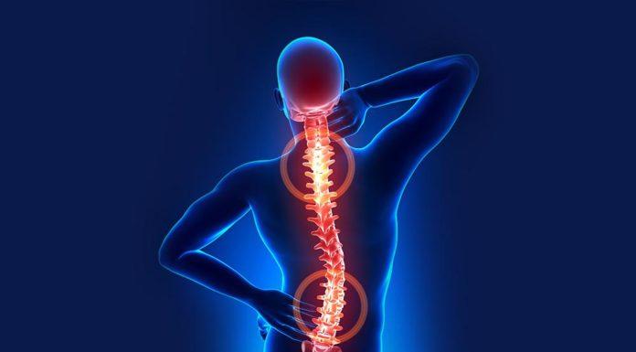 Artrosi: che cos'è, cause, sintomi, diagnosi e possibili cure