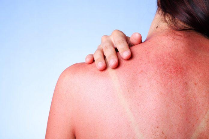Dermatite Polimorfa Solare: che cos'è, sintomi, cause e come diagnosticarla