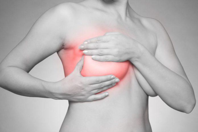 Mastite: che cos'è, cause, sintomi, diagnosi e possibili cure