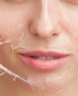 Peeling Chimico: che cos'è, a cosa serve, come funziona e controindicazioni