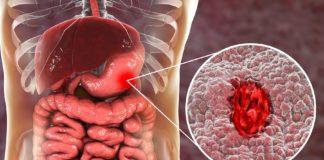 Ulcera: che cos'è, cause, sintomi, diagnosi e possibili cure