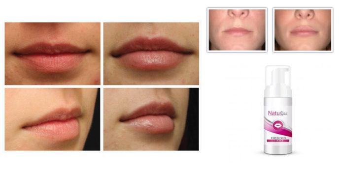 NatuLips: Siero Rimpolpante e Volumizzante labbra, funziona davvero? Recensioni, opinioni e dove comprarlo