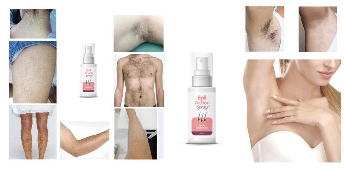 Epil Action Spray: spray depilatorio indolore per i peli del corpo, funziona davvero? Recensioni, opinioni e dove comprarlo