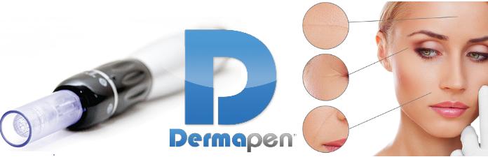 DermaPen penna per trattamento Needling: che cos'è, a cosa serve, come funziona e dove praticarlo