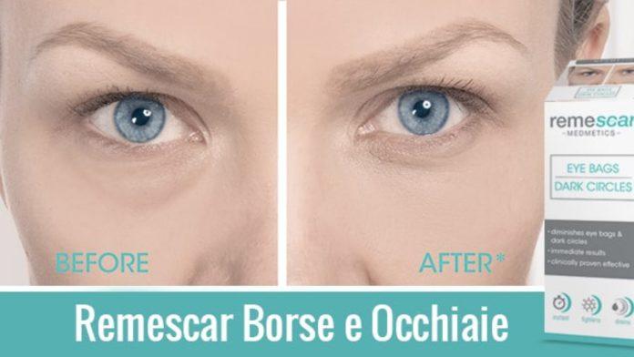 Remescar Borse e Occhiaie: crema per ridurre borse e occhiaie, funziona davvero? Recensioni, opinioni e prezzo
