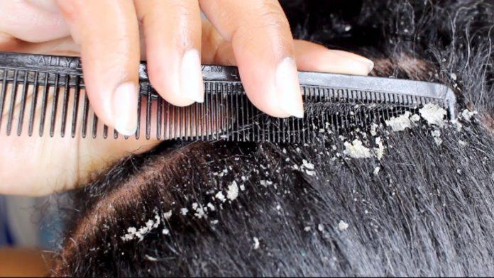 Forfora grassa e secca nei capelli: che cos'è, cause, sintomi e possibili cure