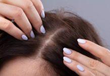 Brufoli in testa: cosa sono, cause, sintomi e possibili cure