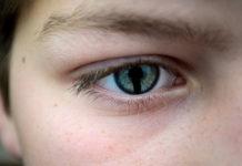 Coloboma: che cos'è, sintomi, cause, diagnosi e possibili cure