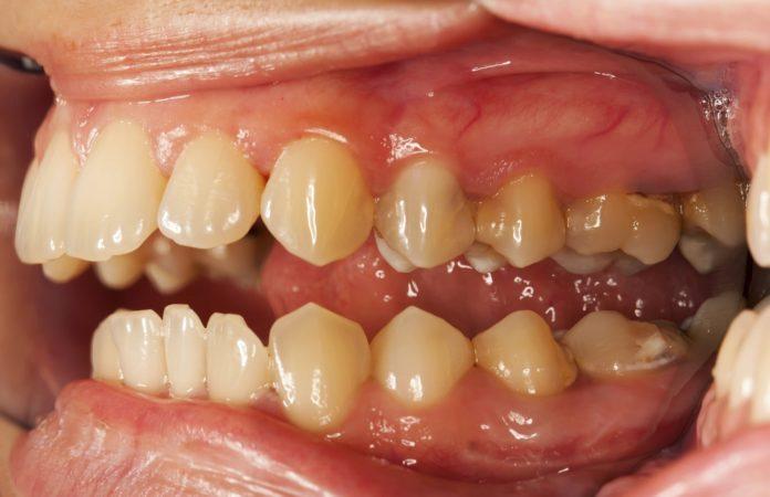 Denti Gialli: cosa sono, cause, cosa mangiare, prevenzione e possibili cure