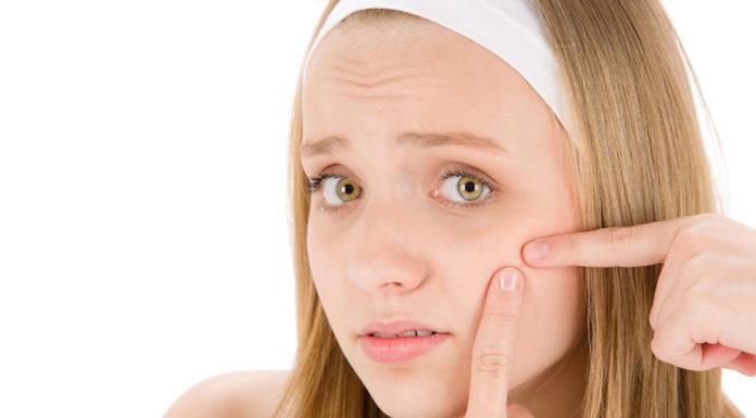 Dieta Anti Acne: che cos'è, cosa mangiare ed evitare e controindicazioni