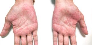 Morbo di Kawasaki: che cos'è, sintomi, cause e possibili cure