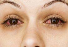 Occhi Arrossati: cosa sono, sintomi, cause e possibili cure