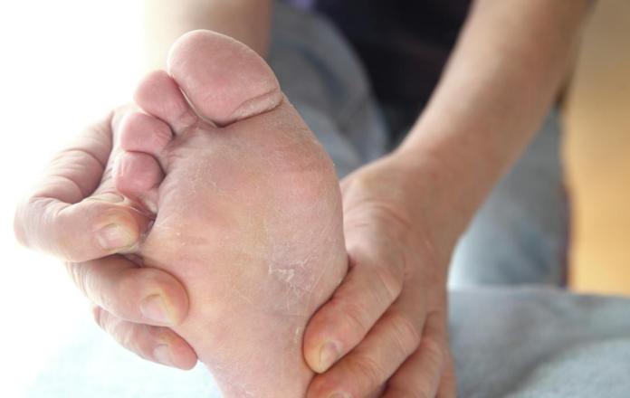 Piede d'Atleta: che cos'è, sintomi, cause e possibili cure