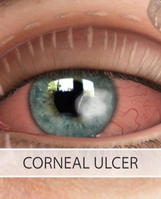 Ulcera corneale: che cos'è, sintomi, cause, diagnosi e possibili cure