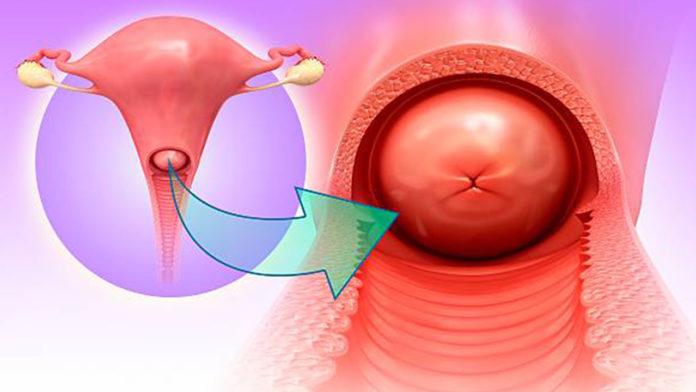Cervicite: che cos'è, cause, sintomi, classificazione, diagnosi e possibili cure