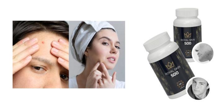 Royal Skin 500: Trattamento Viso intensivo Anti-Acne e Anti-Sebo, funziona davvero? Recensioni, opinioni e dove comprarlo