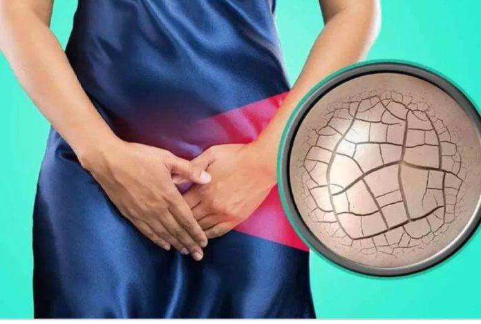 Secchezza Vaginale: che cos'è, sintomi, cause e possibili cure