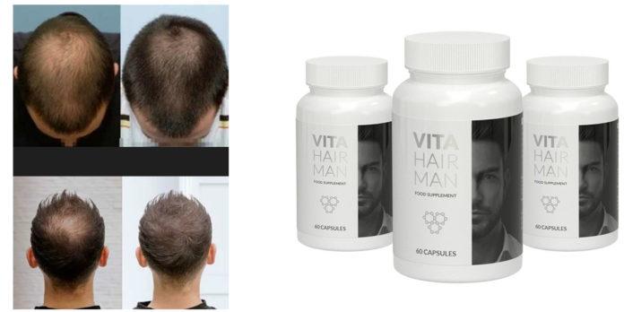 VitaHairMan Capsule: integratore per prevenire la caduta dei capelli e rafforzare la ricrescita, funziona veramente? Recensioni, opinioni e dove comprarlo
