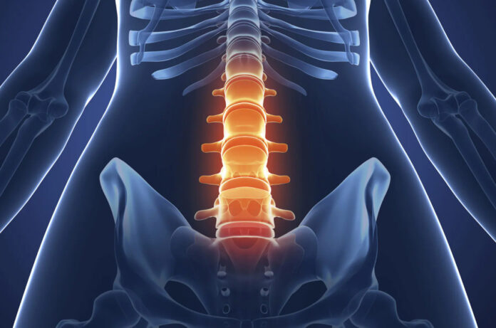 Anchilosi: che cos'è, sintomi, cause, tipologie, diagnosi e possibili cure