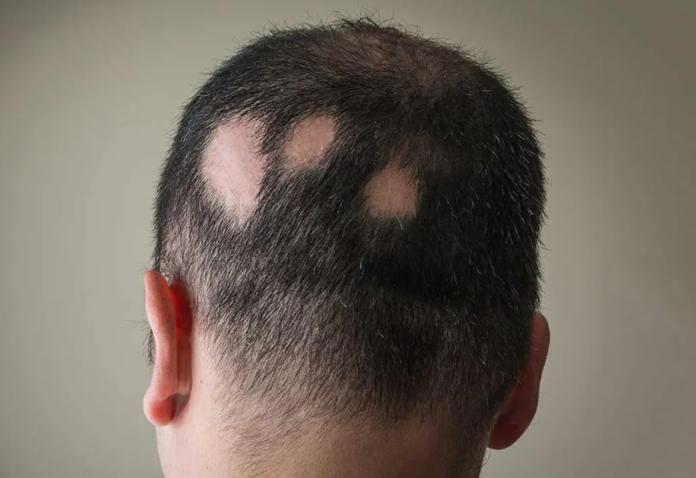Alopecia Areata: che cos'è, cause, sintomi, possibili cure e controindicazioni