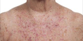 cheratosi-attinica-che-cose-cause-sintomi-diagnosi-e-possibili-cure