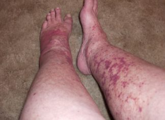 Crioglobulinemia: che cos'è, cause, sintomi, diagnosi e possibili cure