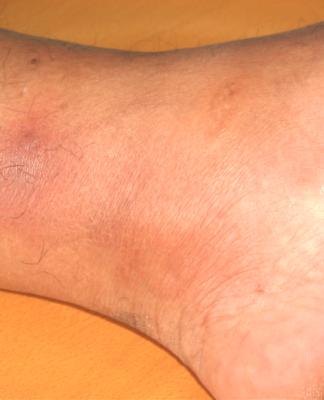 Eritema Nodoso: che cos'è, cause, sintomi, diagnosi e possibili cure