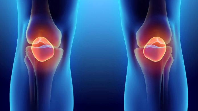 Gonartrosi: che cos'è, sintomi, cause, diagnosi e possibili cure