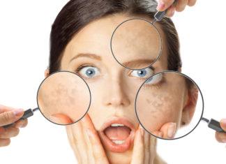 Macchie della pelle (Lentigo Solari): cosa sono, cause, sintomi, diagnosi e possibili cure