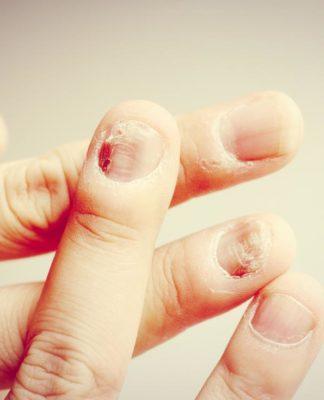 Micosi delle unghie: che cos'è, sintomi, cause e possibili cure