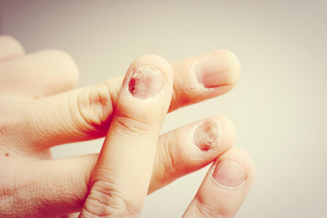 cause di micosi alle unghie