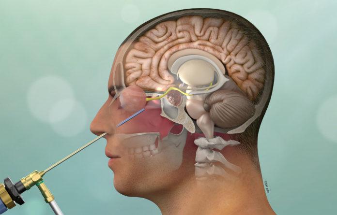 Sindrome di Cushing: che cos'è, sintomi, cause e possibili cure