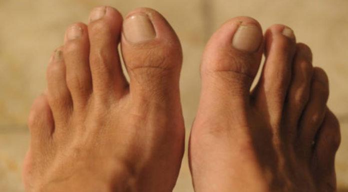 Tigna della pelle nell'uomo: che cos'è, cause, sintomi, diagnosi e possibili cure