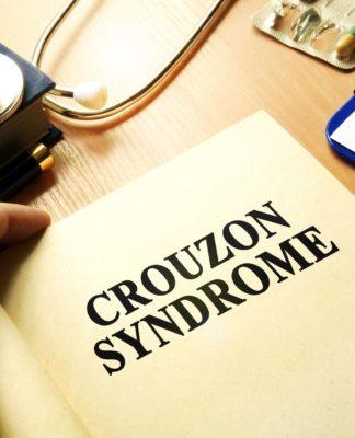 Sindrome di Crouzon: che cos'è, sintomi, diagnosi, cause e possibili cure