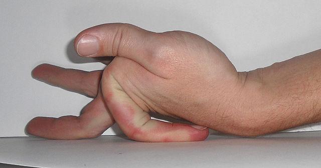 Sindrome di Ehlers Danlos: che cos'è, sintomi, diagnosi, cause e possibili cure