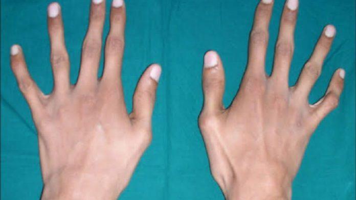Sindrome di Marfan: che cos'è, sintomi, diagnosi, cause e possibili cure