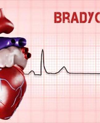 Bradicardia Sinusale: che cos'è, sintomi, cause, diagnosi e possibili cure