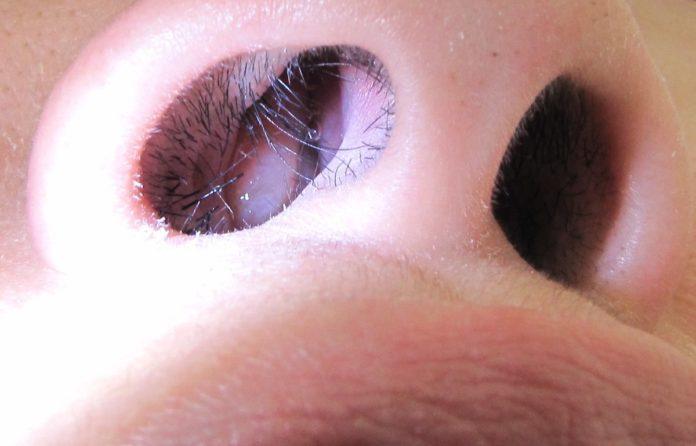 Polipi Nasali: cosa sono, cause, sintomi, diagnosi e possibili cure