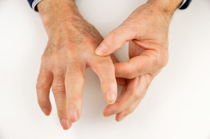 Sclerodermia (sclerosi sistemica): che cos'è, cause, sintomi, diagnosi e possibili cure