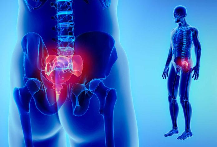 sindrome-del-piriforme-che-cose-sintomi-cause-diagnosi-e-possibili-cure