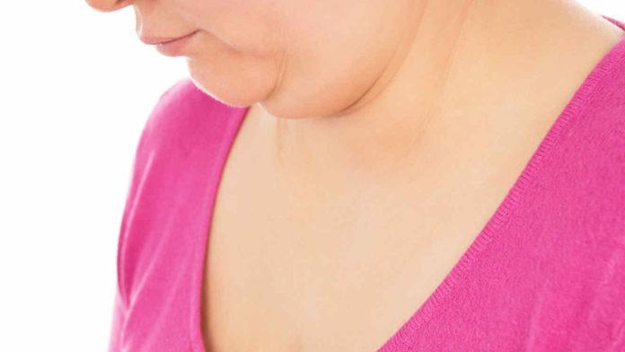 Sindrome di Cushing: che cos'è, sintomi, diagnosi, cause e possibili cure