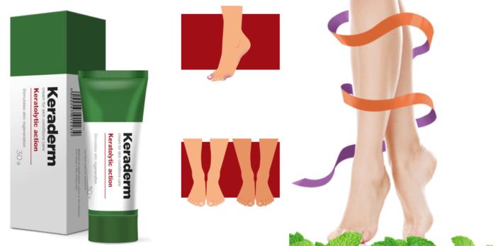 Keraderm: crema antimicotica per eliminare Micosi, Funghi e Verruche dai Piedi, funziona davvero? Recensioni, opinioni e dove comprarlo