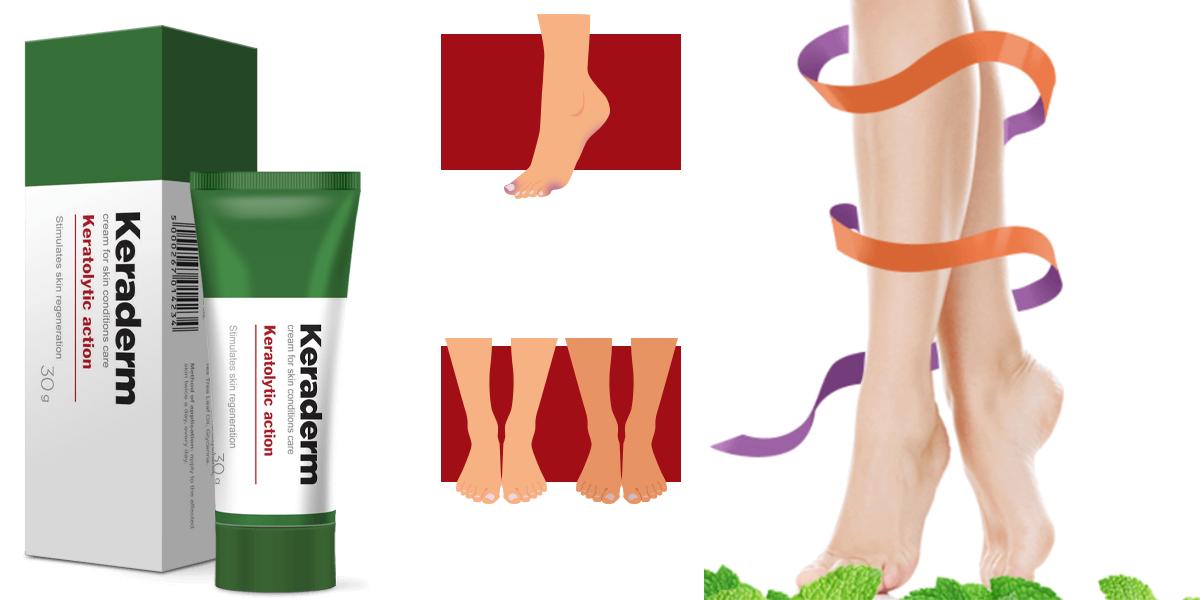 come eliminare i funghi nei piedi